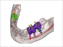 手術前のシミュレーション