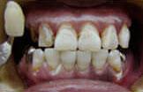ご自身の歯を整えます
